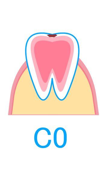 C0:初期のむし歯