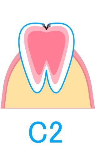 C2:象牙質のむし歯