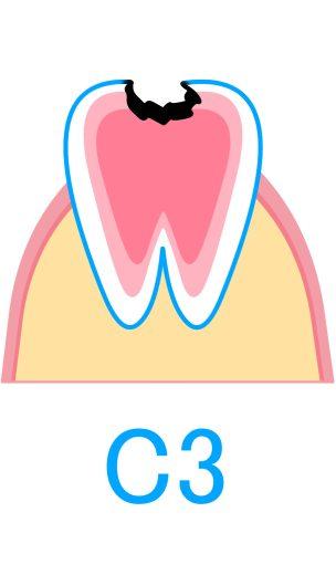 C3:神経にまで進行したむし歯