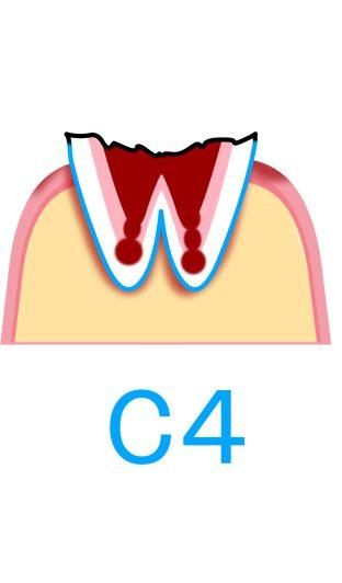 C4:歯根まで進行したむし歯