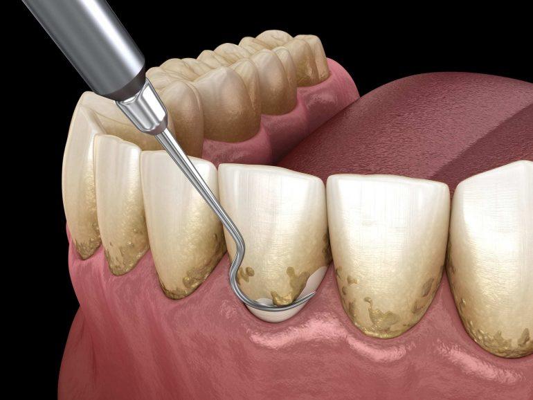 超音波スケーラーによる歯周病治療