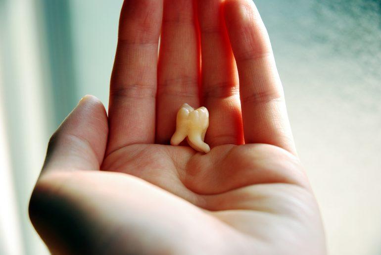 歯周病は歯を失う原因の第一位