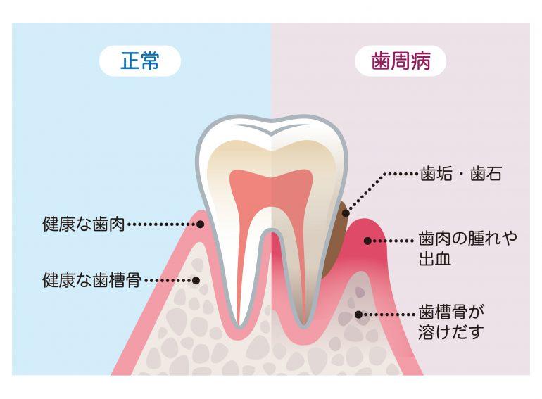 知らない間に進行する歯周病