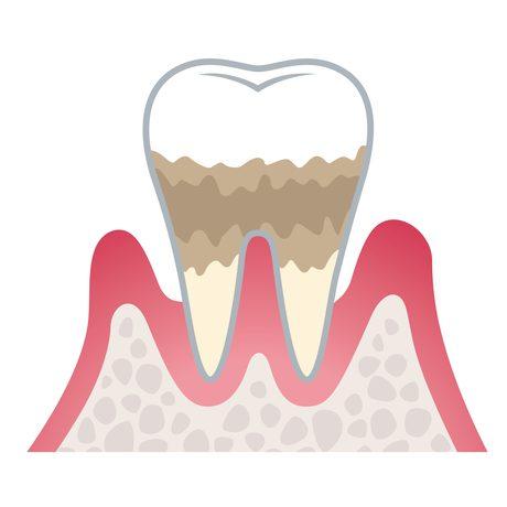 中度歯周病(歯周炎)