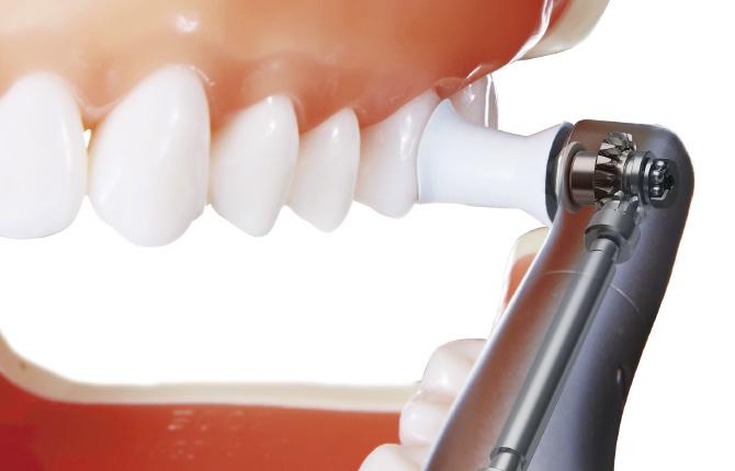 歯のクリーニング「PMTC」